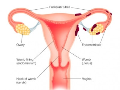 endometriosis-nutritional-therapy