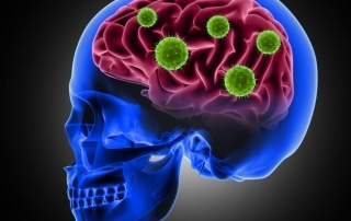 brain health - viruses and herbs