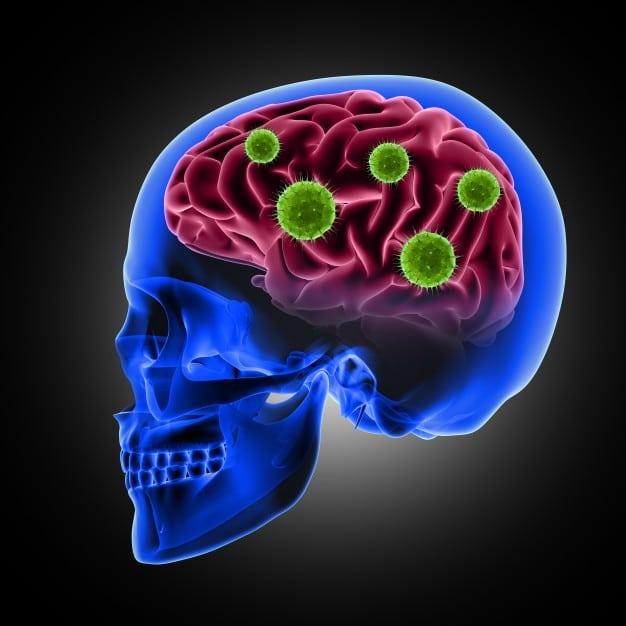 brain health - viruses and herbs